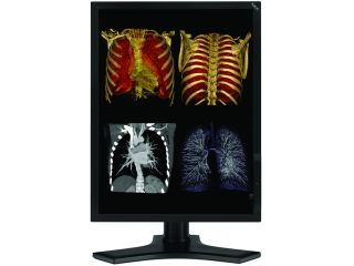 "NEC Display Solutions MD213MC Black 21.3"" 12ms(GTG) Tilt,Swivel & Height Adjustable Stand  LCD Monitor for Medical Professionals 400 cd/m2 750:1"